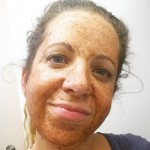 Homemade face mask = 1/2 tsp cinnamon, 1/2 tsp nutmeg,…